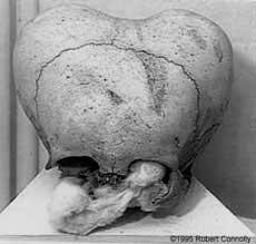 Cráneo gigante2