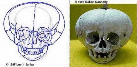 Cráneo gigante3